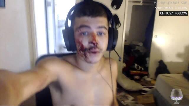 Twitch expulsa a un streamer por retransmitir con la cara ensangrentada tras ser asaltado