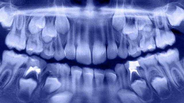 Operan de emergencia a un niño de 7 años y le extraen más de 500 dientes